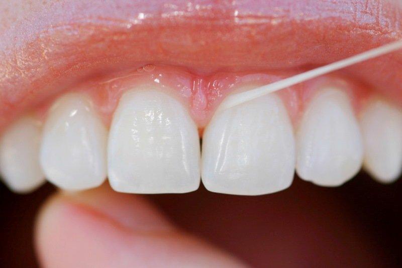 d64013885 Saiba como usar corretamente o fio dental - radaraltovale.com